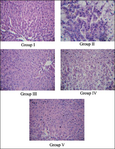 Figure 2: Histopathological view of the pancreas of normal and treated rats: Photomicrographs showing normal structure in Group I and destructed cellular architecture in diabetic control rats (Group II). Group III showing a moderate protective effect whereas Group IV (Glibenclamide 3mg/kg) and Group V (METD 200mg/kg) trated rats showing normal cellular appearence